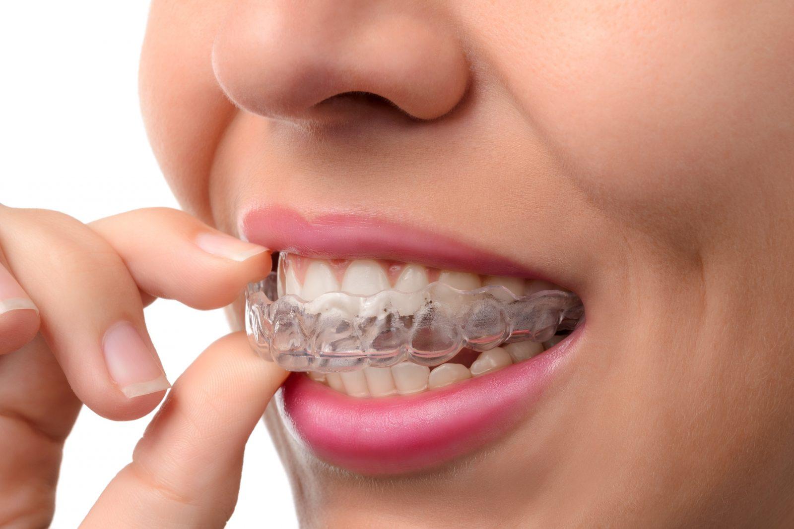 Unsichtbare Zahnspangen wie Invasalign