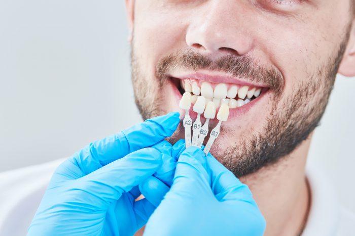 Behandlungen der Ästhetische Zahnmedizin