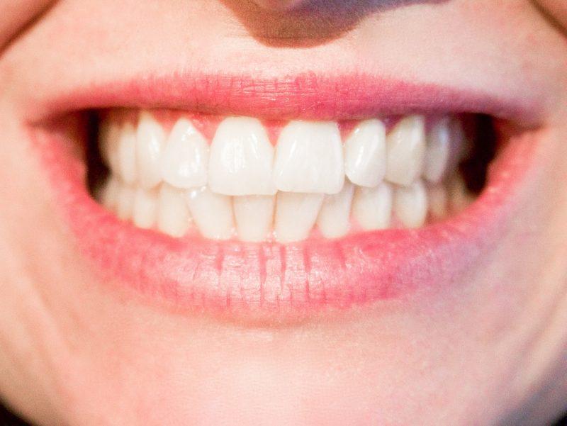 Zahnersatz und Zahnimplantat im Berliner Zahnzentrum Mitte