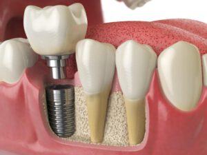 Linker freigestellter Zahn zeigt die Verankerung einer Titanschraube im Kiefer.